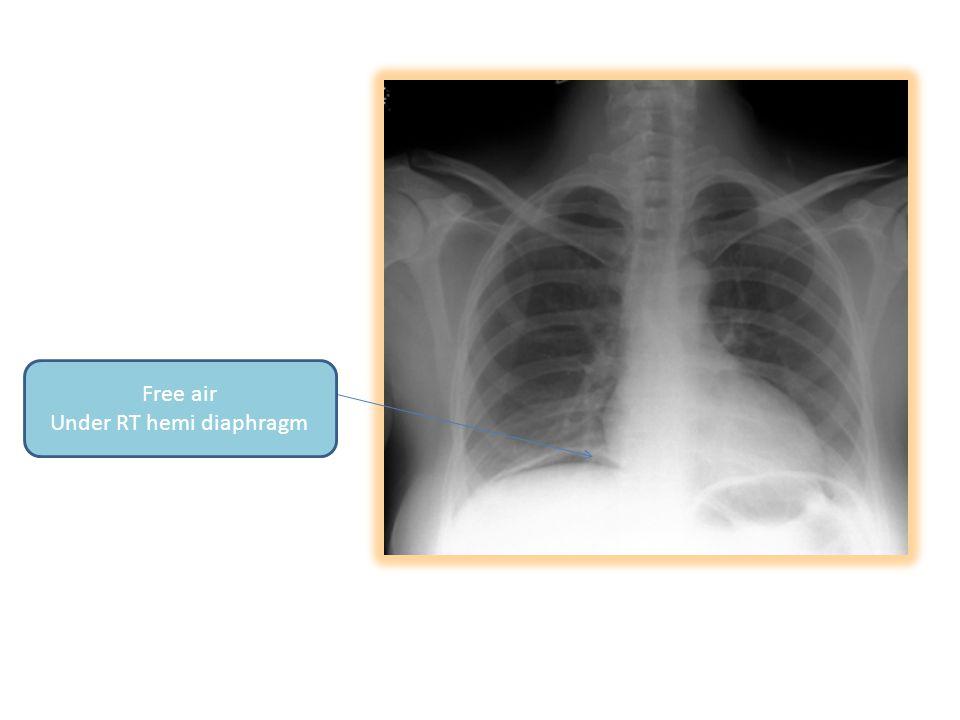 Free air Under RT hemi diaphragm