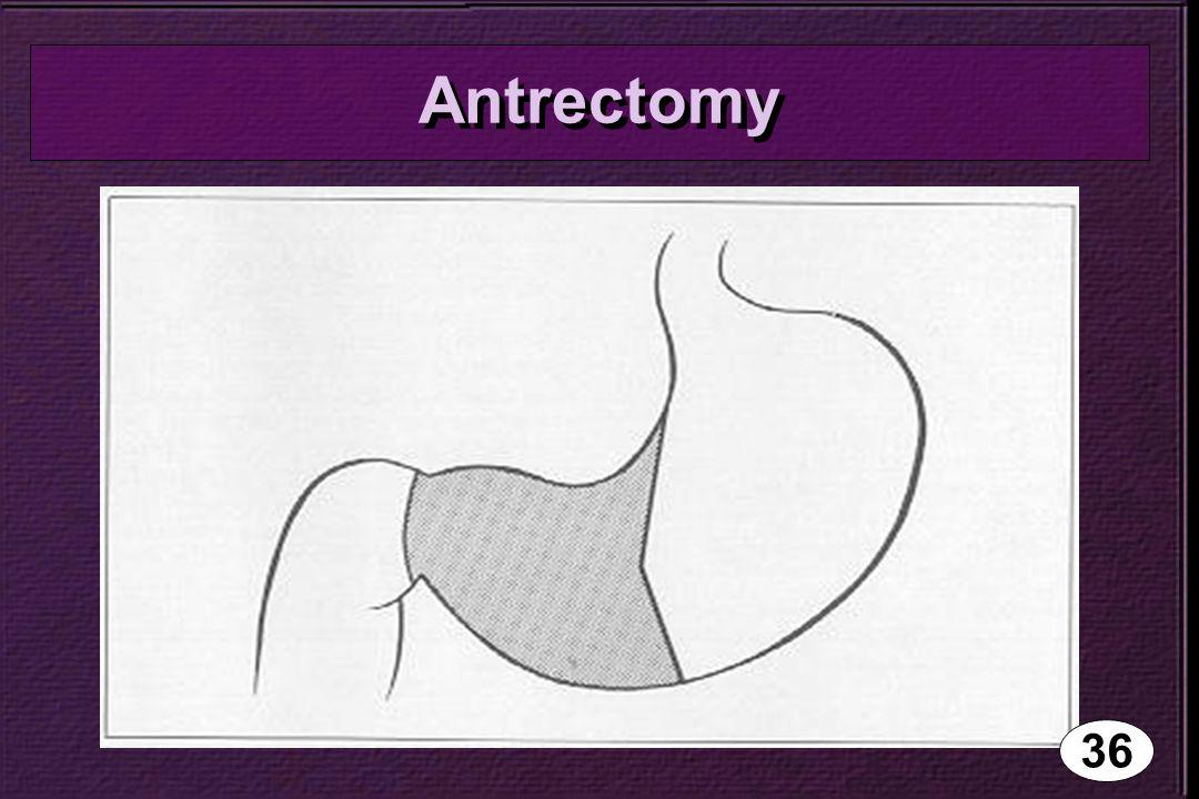 Antrectomy 36