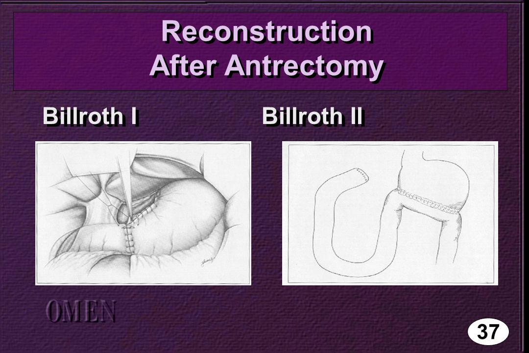 Reconstruction After Antrectomy Billroth I Billroth II 37