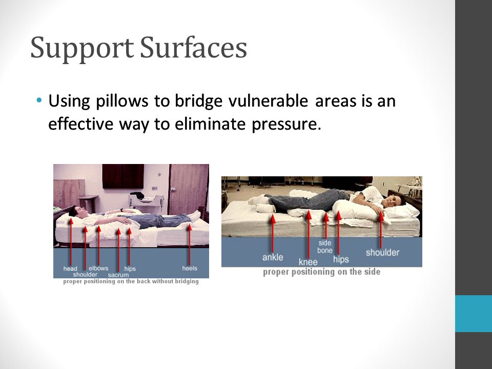 Support Surfaces Using pillows to bridge vulnerable areas is an effective way to eliminate pressure. Using pillows to bridge vulnerable areas is an ef