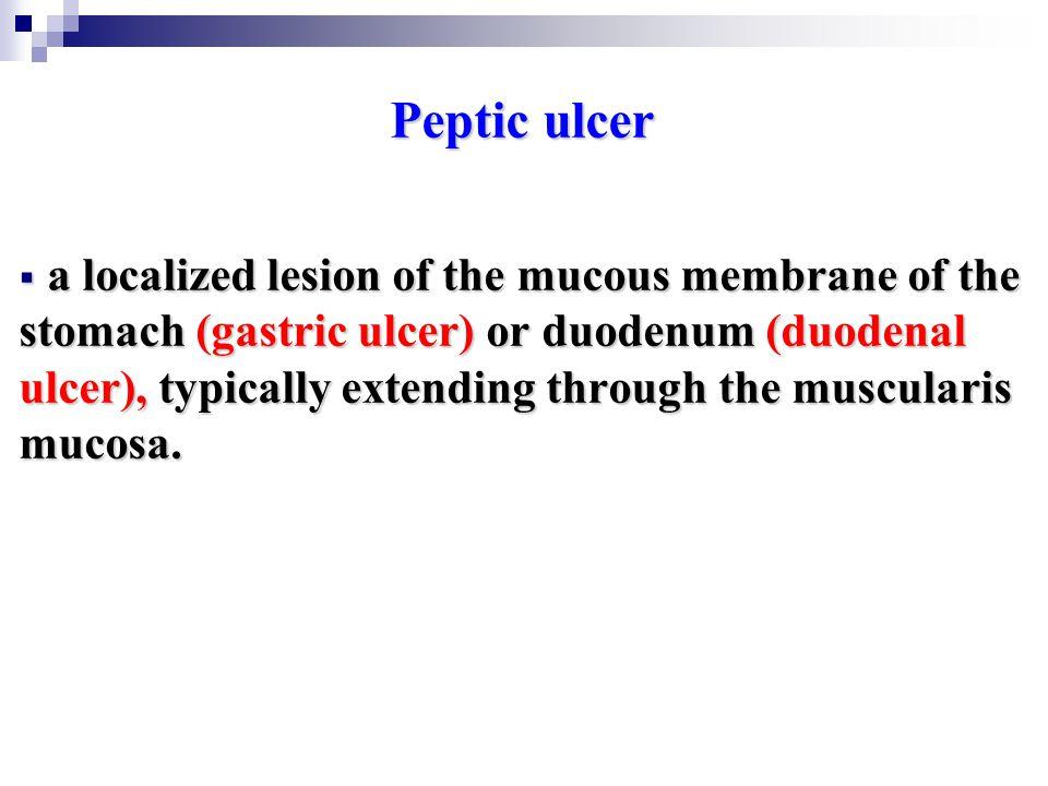 Pathophysiology: is imbalance between aggressive factors (acid & pepsin) and defensive factors(e.g.