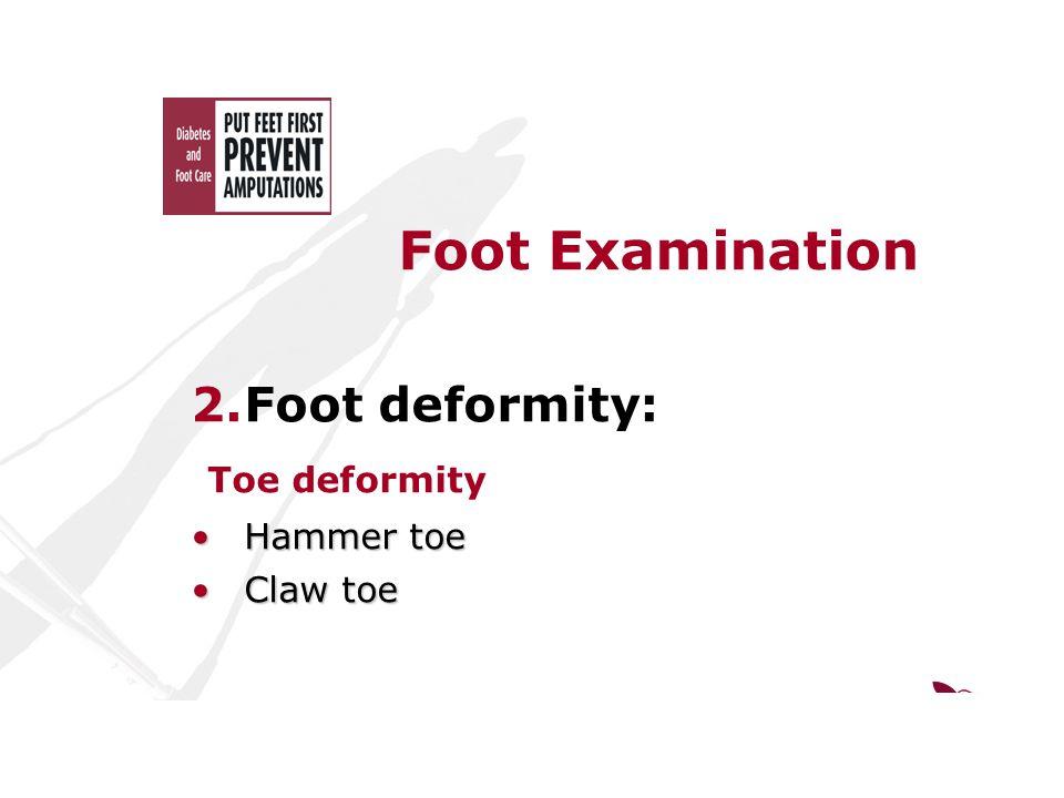 Foot Examination 2.Foot deformity: Toe deformity Hammer toeHammer toe Claw toeClaw toe