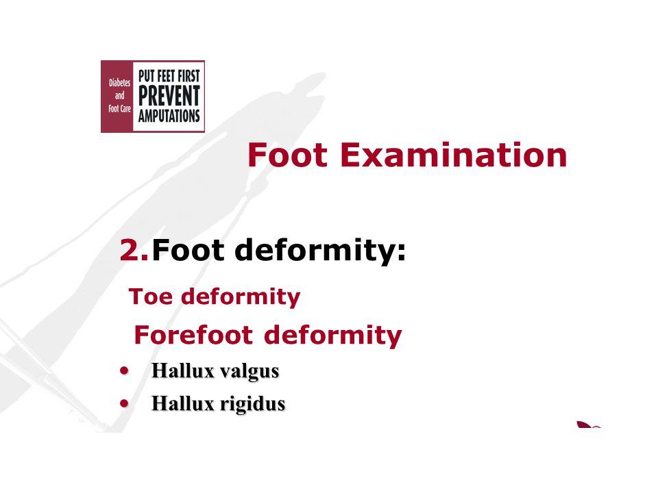Foot Examination 2.Foot deformity: Toe deformity Forefoot deformity Hallux valgus Hallux valgus Hallux rigidus Hallux rigidus