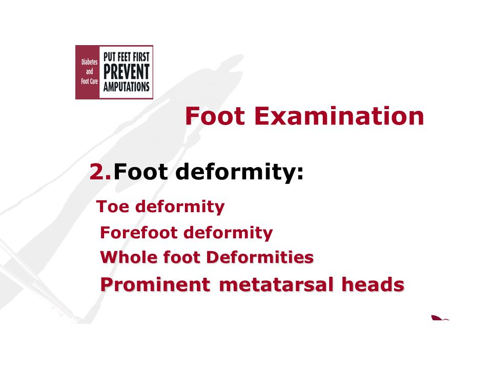 Foot Examination 2.Foot deformity: Toe deformity Forefoot deformity Whole foot Deformities Whole foot Deformities Prominent metatarsal heads Prominent metatarsal heads