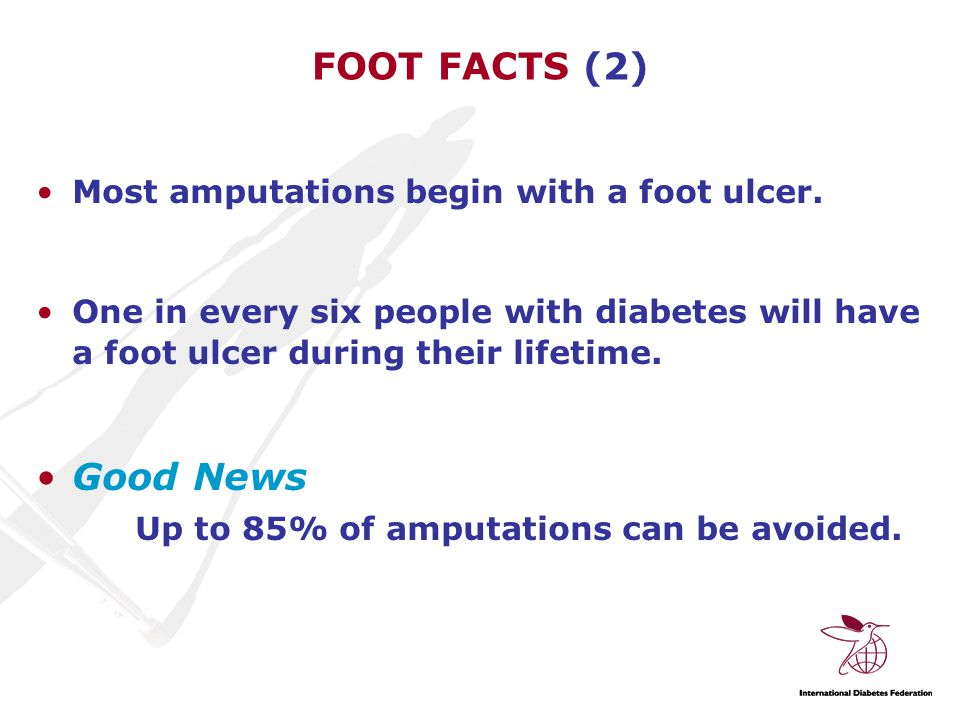 FOOT FACTS (2) Most amputations begin with a foot ulcer.