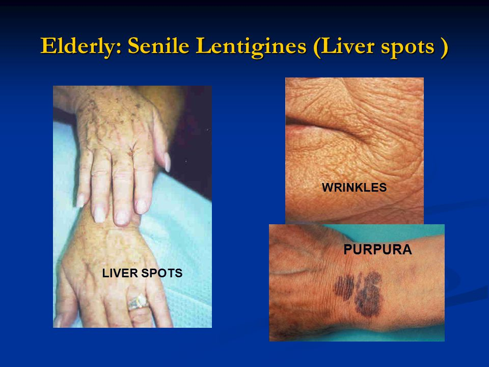 Elderly: Senile Lentigines (Liver spots ) LIVER SPOTS WRINKLES PURPURA