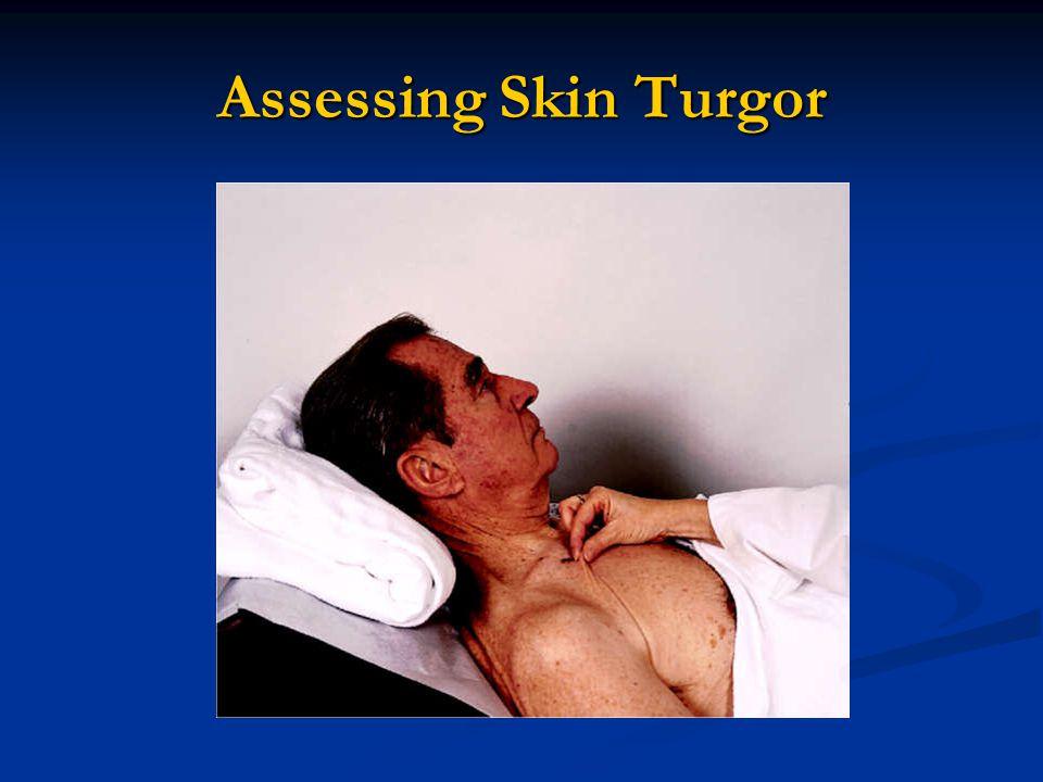Assessing Skin Turgor