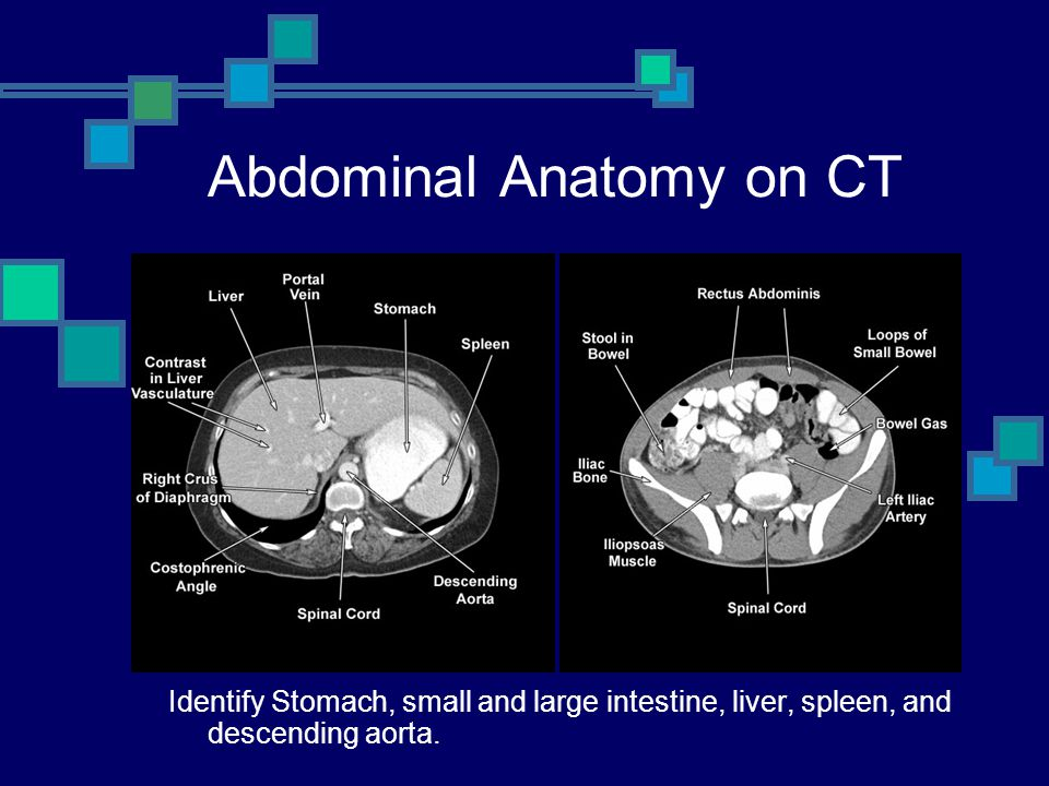Abdominal Anatomy on CT Identify Stomach, small and large intestine, liver, spleen, and descending aorta.