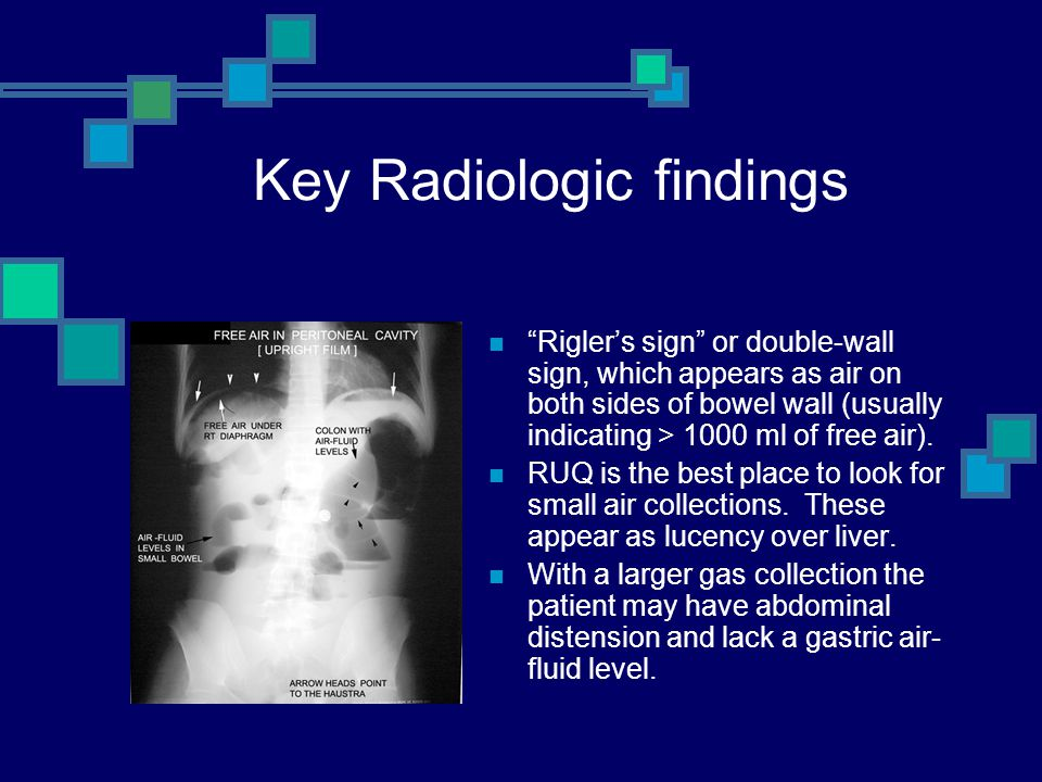 """Key Radiologic findings """"Rigler's sign"""" or double-wall sign, which appears as air on both sides of bowel wall (usually indicating > 1000 ml of free ai"""