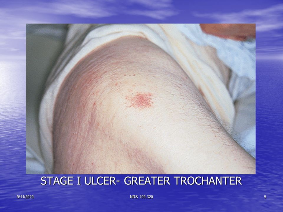 STAGE I ULCER- GREATER TROCHANTER 5/11/2015NRS 105.3205