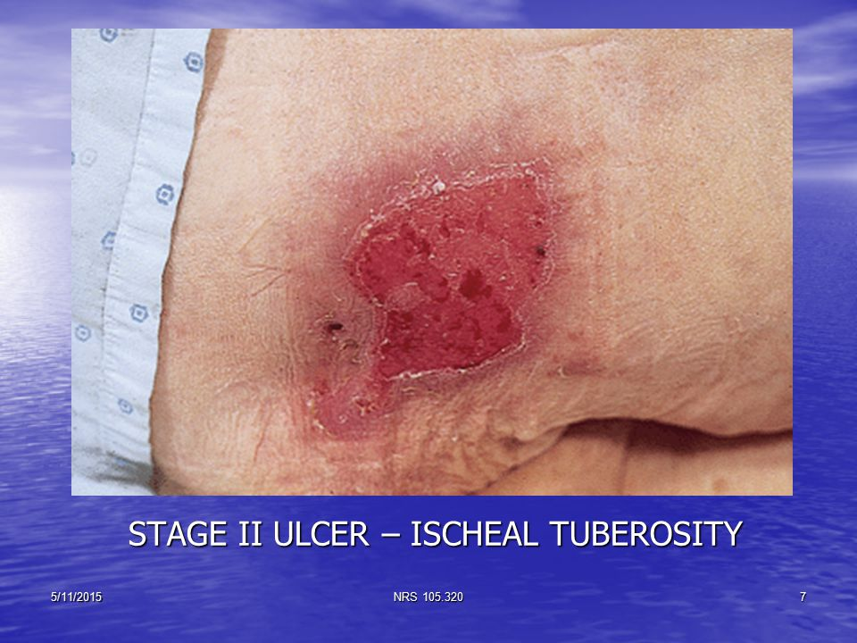 STAGE II ULCER – ISCHEAL TUBEROSITY 5/11/2015NRS 105.3207