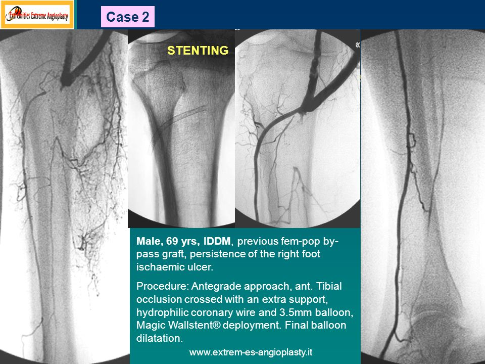 www.extrem-es-angioplasty.it Male, 69 yrs, IDDM, previous fem-pop by- pass graft, persistence of the right foot ischaemic ulcer. Procedure: Antegrade