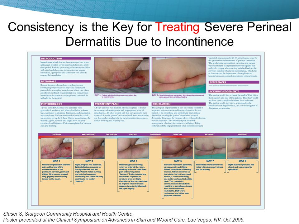 Consistency is the Key for Treating Severe Perineal Dermatitis Due to Incontinence Sluser S, Sturgeon Community Hospital and Health Centre. Poster pre