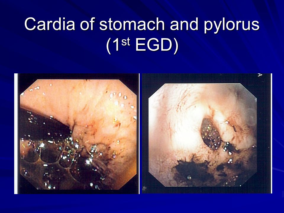 Cardia of stomach and pylorus (1 st EGD)