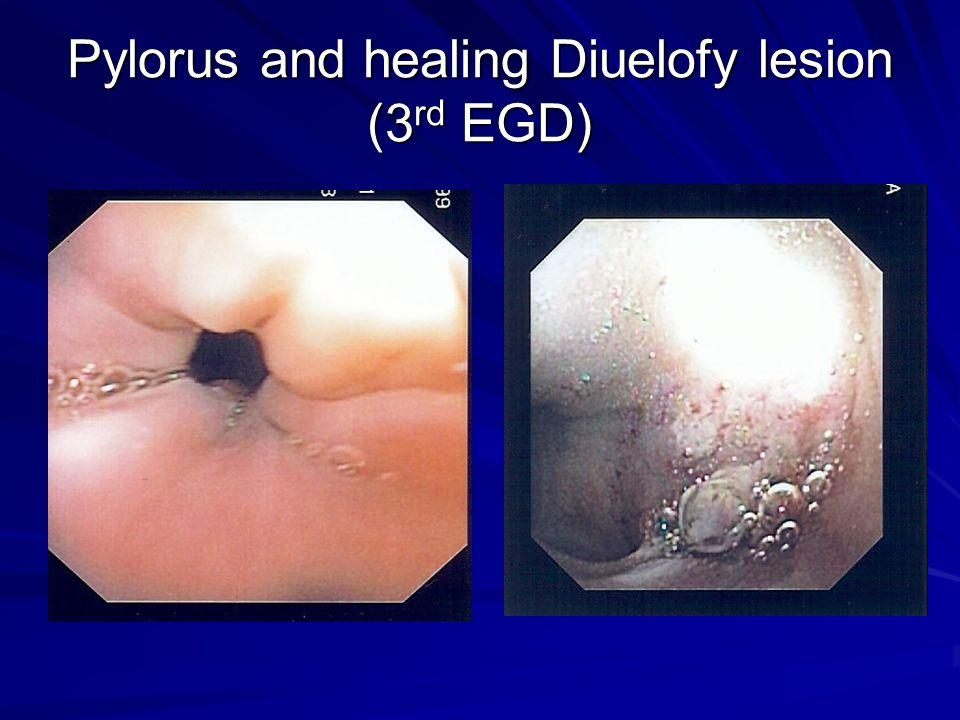 Pylorus and healing Diuelofy lesion (3 rd EGD)