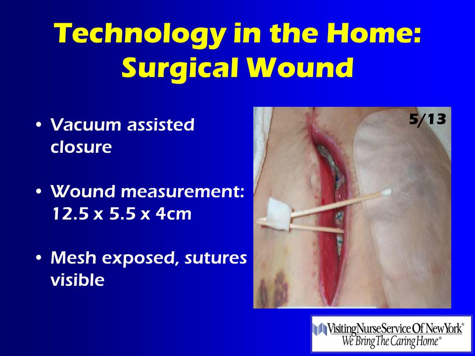Technology in the Home: Surgical Wound Vacuum assisted closure Wound measurement: 12.5 x 5.5 x 4cm Mesh exposed, sutures visible 5/13