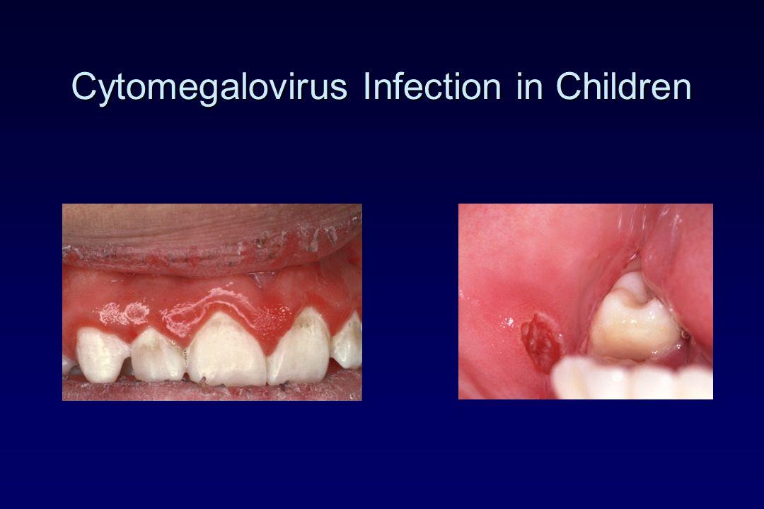 Cytomegalovirus Infection in Children