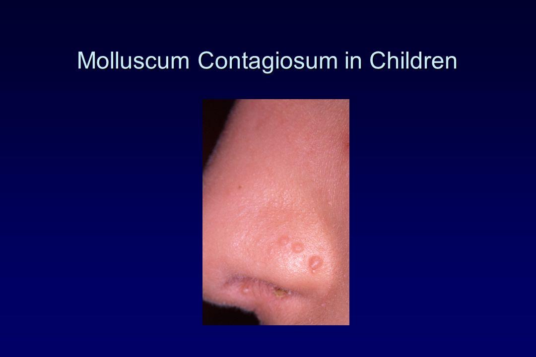 Molluscum Contagiosum in Children