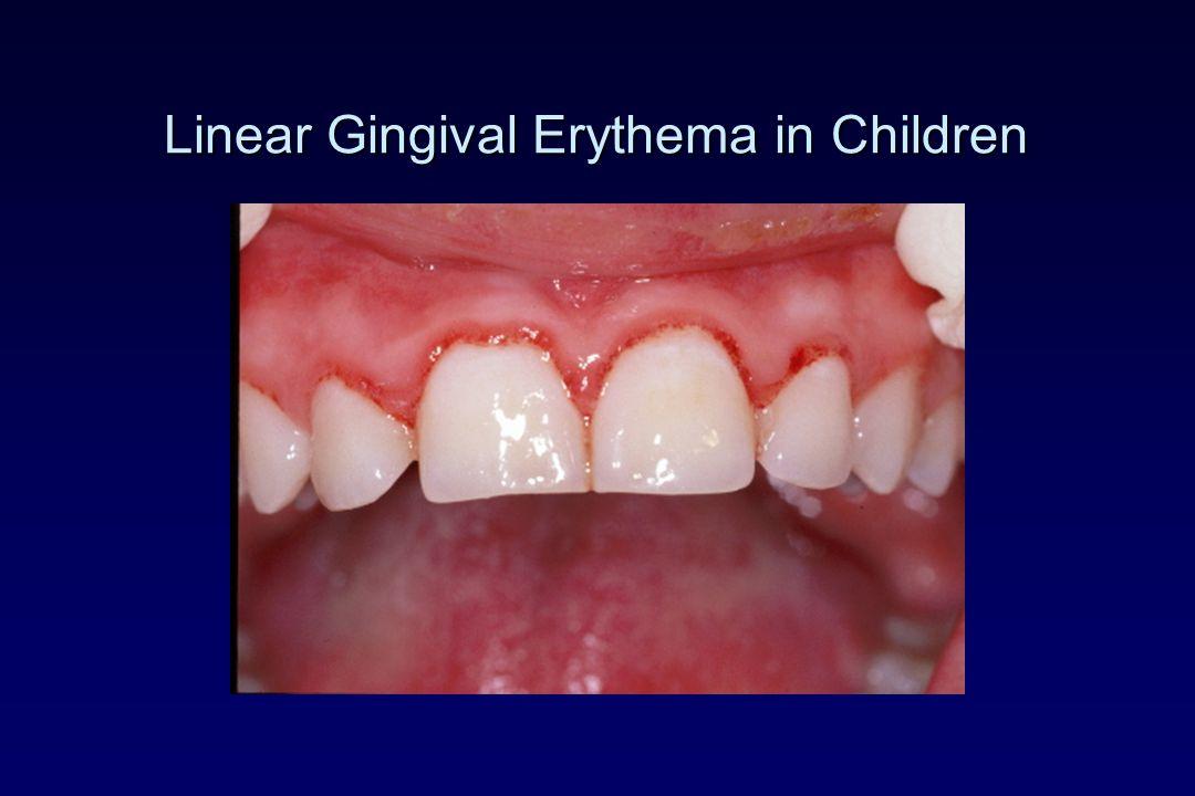 Linear Gingival Erythema in Children