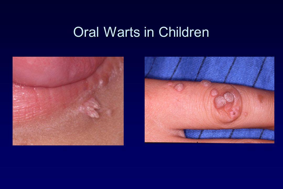Oral Warts in Children
