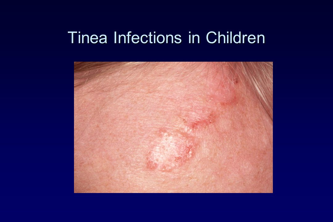 Tinea Infections in Children