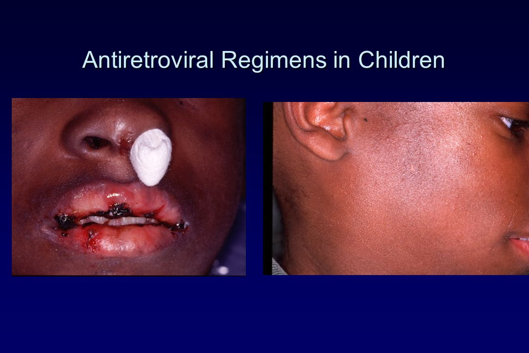 Antiretroviral Regimens in Children