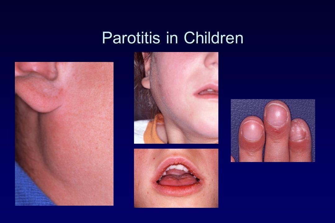 Parotitis in Children