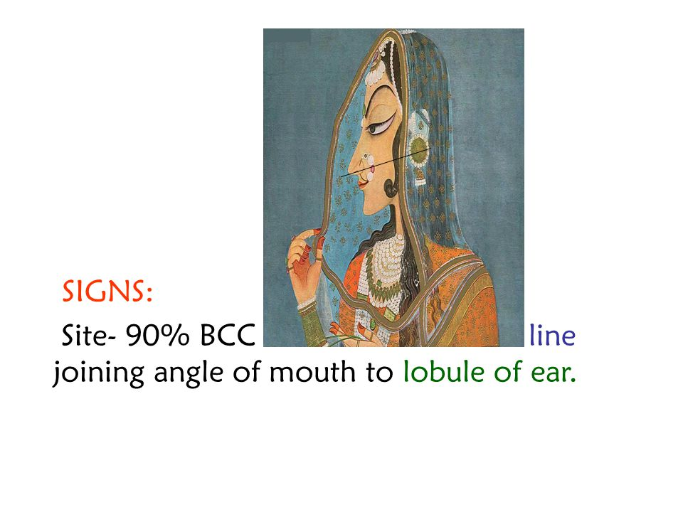 SIGNS: Site- 90% BCC seen on face above line joining angle of mouth to lobule of ear.