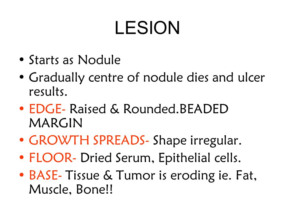 LESION Starts as Nodule Gradually centre of nodule dies and ulcer results.