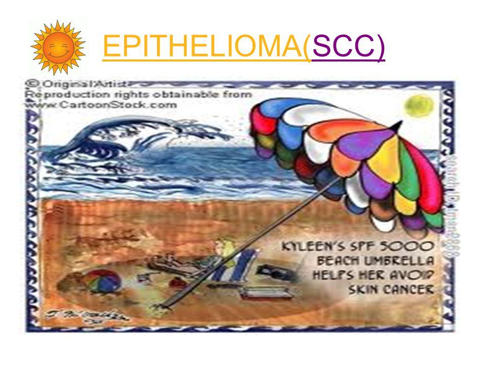 EPITHELIOMA(SCC)