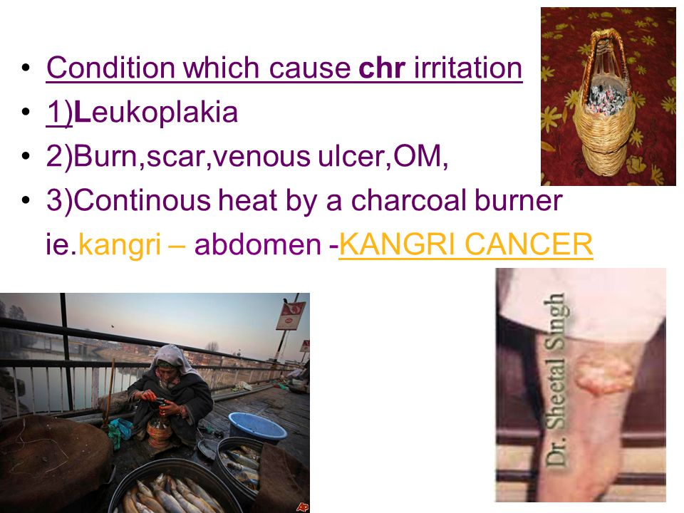 Condition which cause chr irritation 1)Leukoplakia 2)Burn,scar,venous ulcer,OM, 3)Continous heat by a charcoal burner ie.kangri – abdomen -KANGRI CANCER