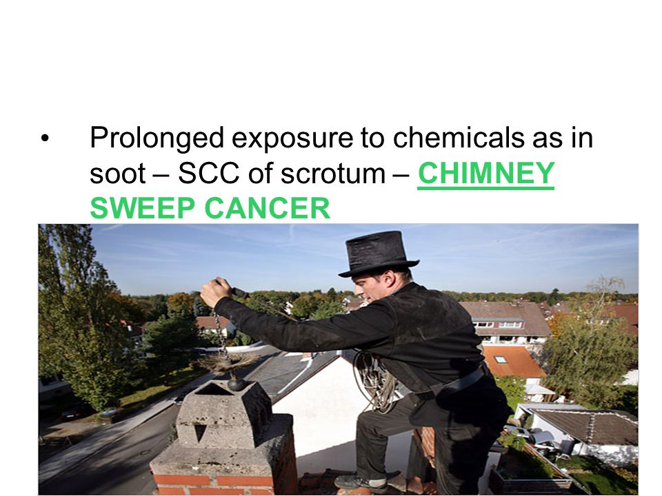 Prolonged exposure to chemicals as in soot – SCC of scrotum – CHIMNEY SWEEP CANCER