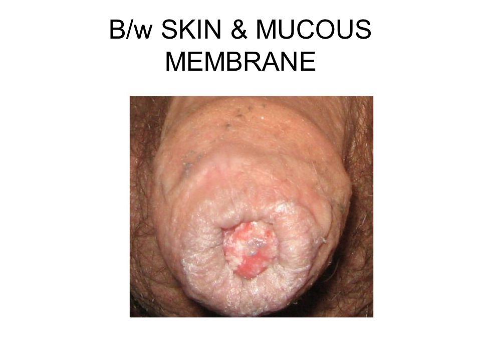 B/w SKIN & MUCOUS MEMBRANE
