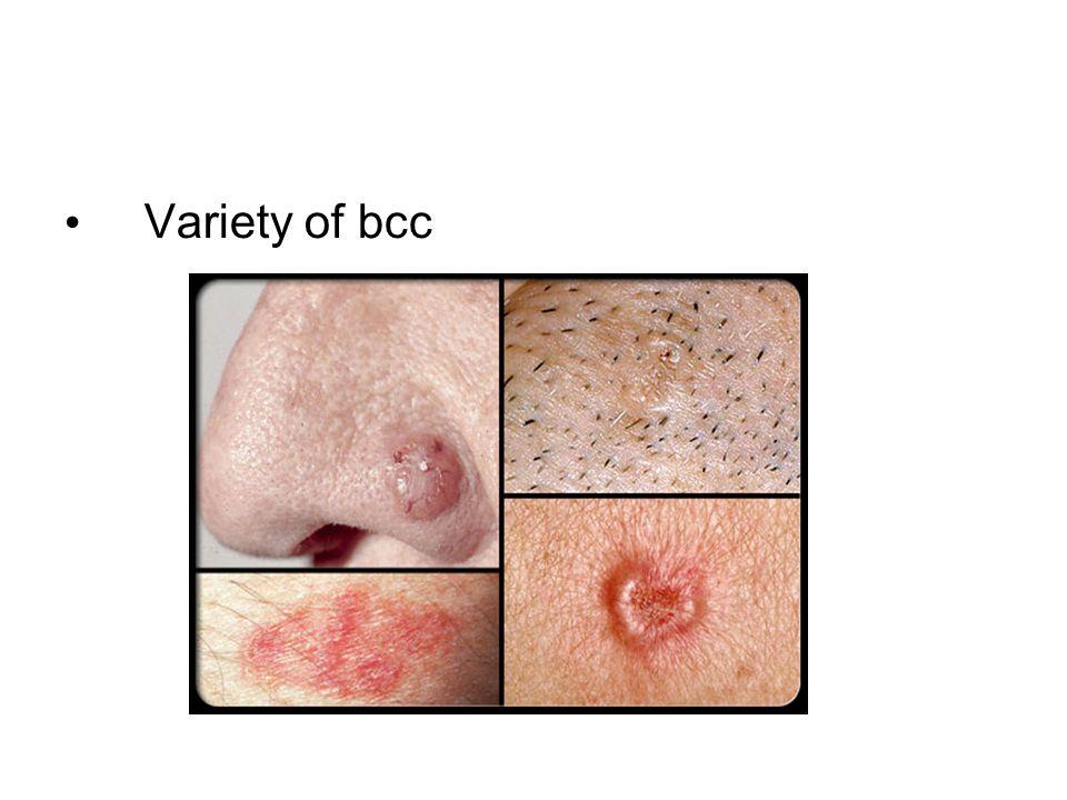Variety of bcc