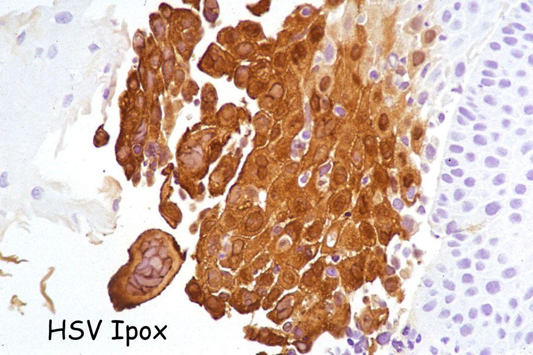 HSV Ipox