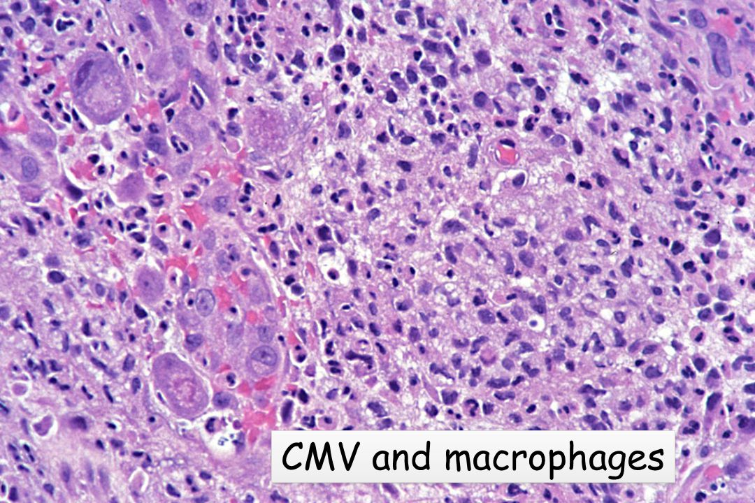 CMV and macrophages