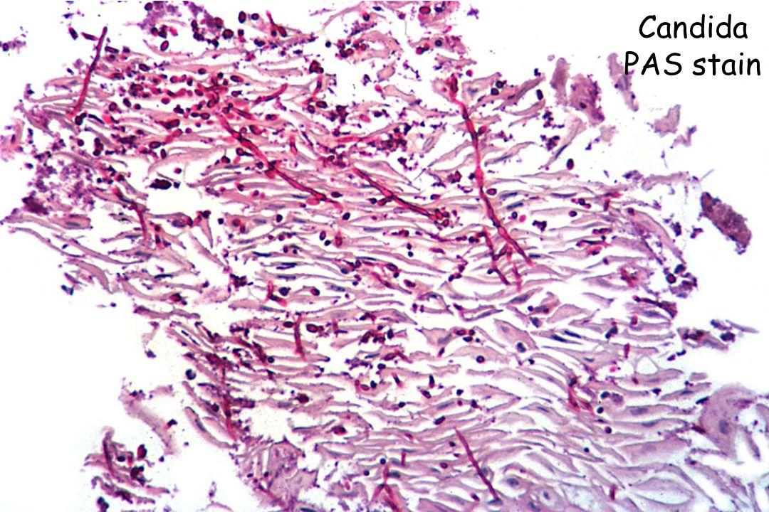 Candida Lymphocytic reaction