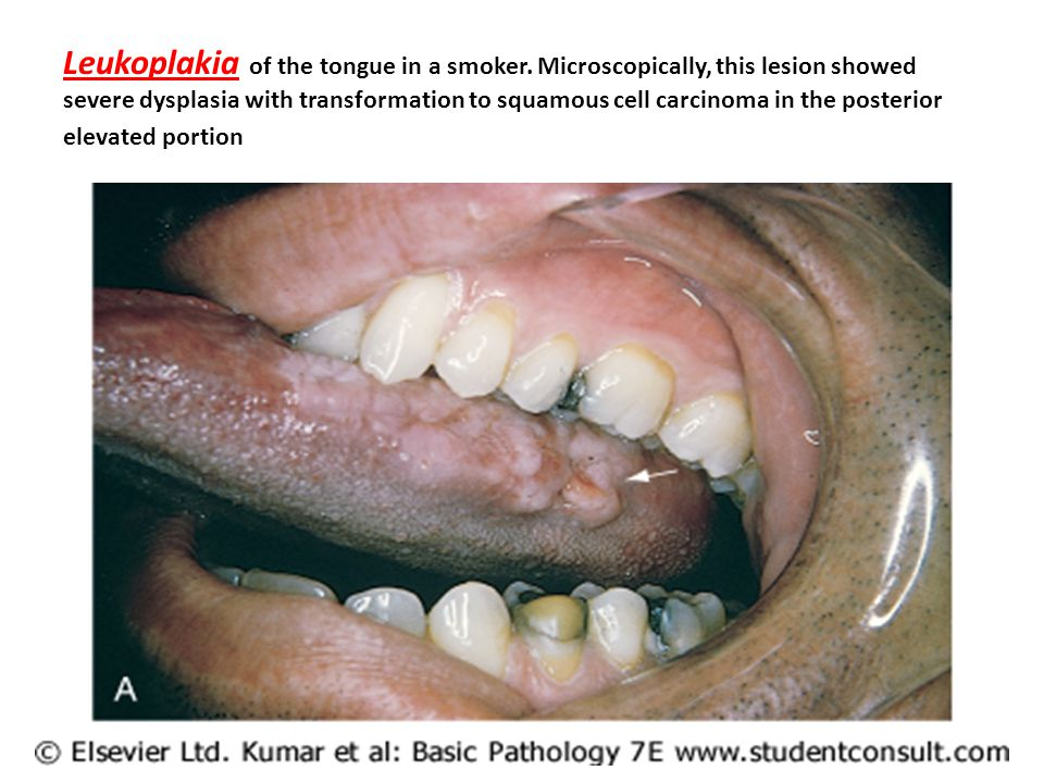 Leukoplakia of the tongue in a smoker.