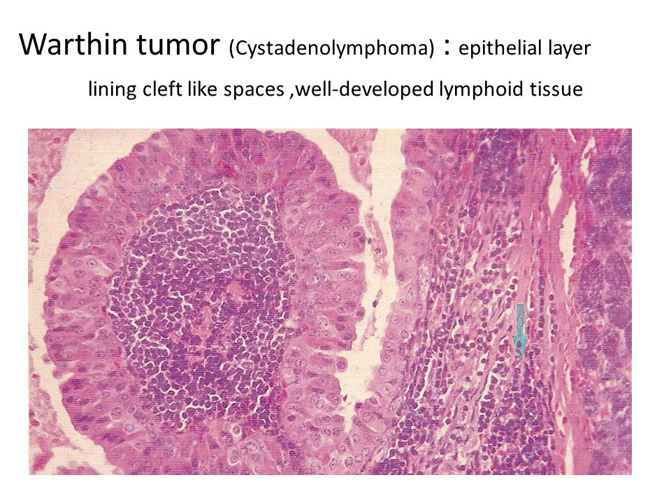 Warthin tumor (Cystadenolymphoma) : epithelial layer lining cleft like spaces,well-developed lymphoid tissue