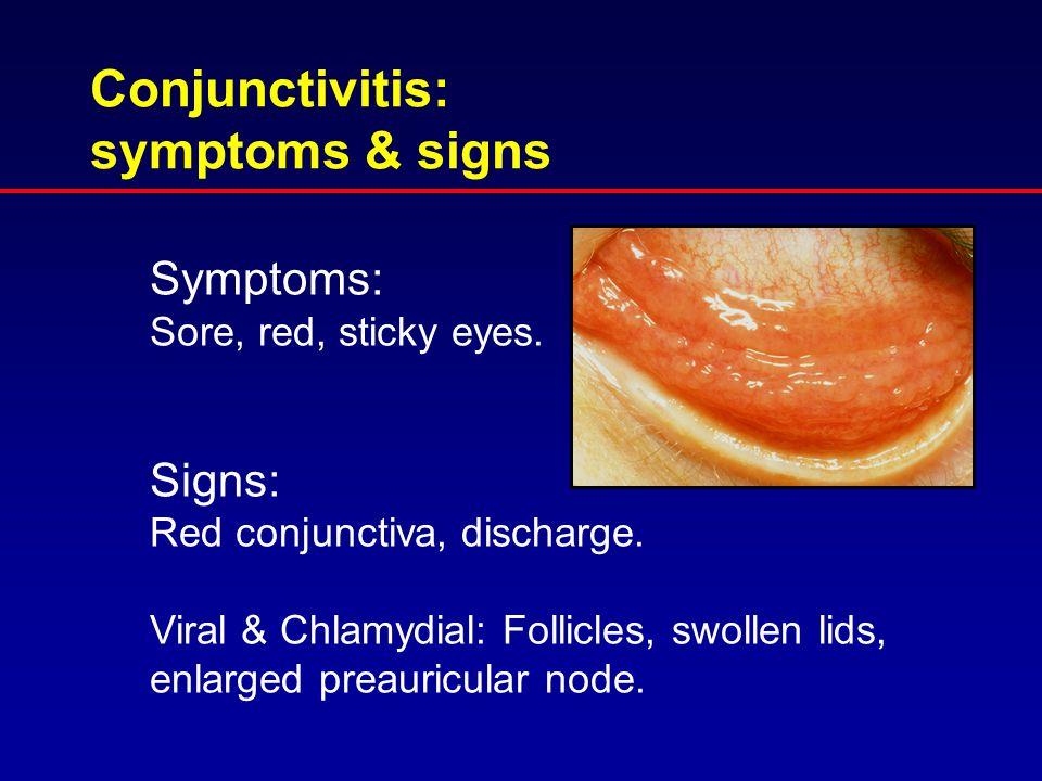 Conjunctivitis: symptoms & signs Symptoms: Sore, red, sticky eyes.