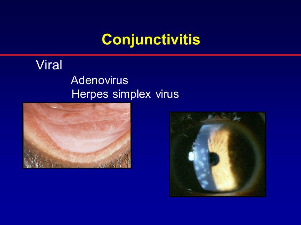 Conjunctivitis Viral Adenovirus Herpes simplex virus