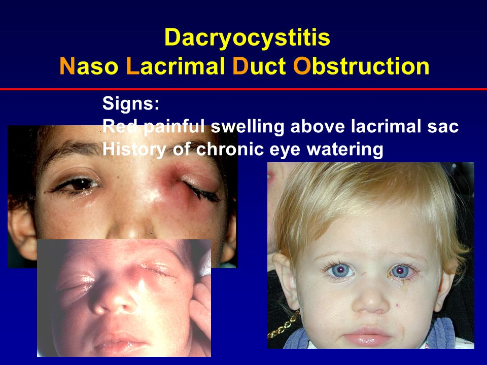 Dacryocystitis Naso Lacrimal Duct Obstruction Signs: Red painful swelling above lacrimal sac History of chronic eye watering