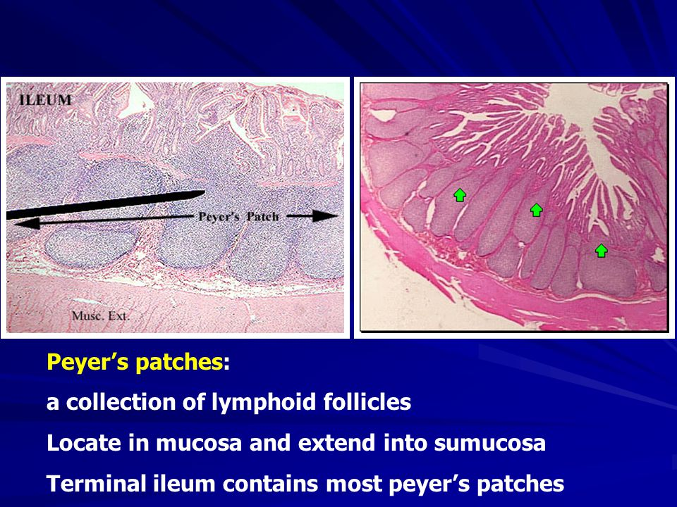 Peyer's patches: a collection of lymphoid follicles Locate in mucosa and extend into sumucosa Terminal ileum contains most peyer's patches