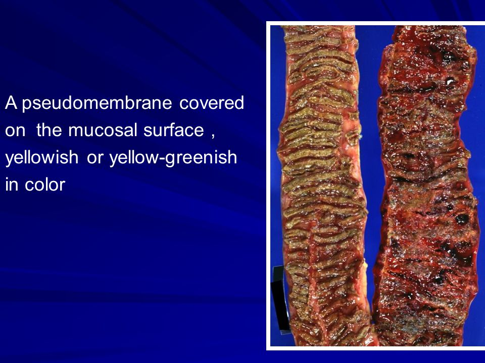A pseudomembrane covered on the mucosal surface, yellowish or yellow-greenish in color
