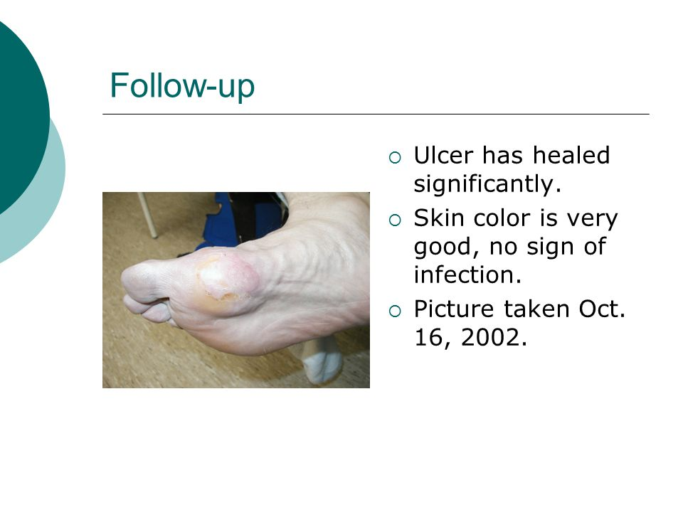 Follow-up  Ulcer has healed significantly.  Skin color is very good, no sign of infection.