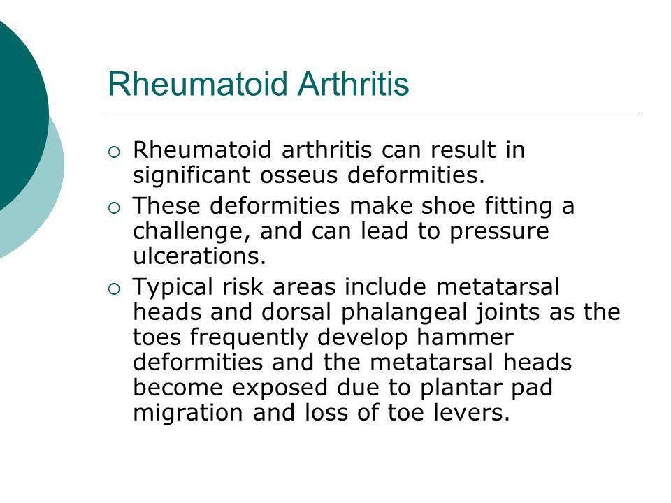 Rheumatoid Arthritis  Rheumatoid arthritis can result in significant osseus deformities.