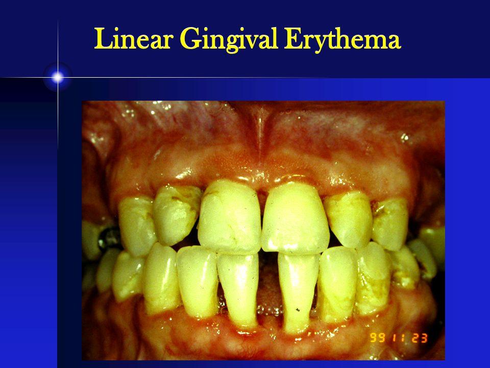 Linear Gingival Erythema