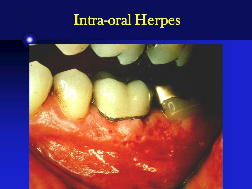 Intra-oral Herpes