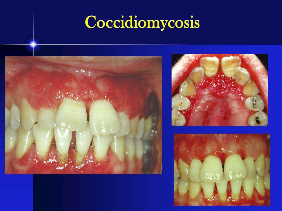 Coccidiomycosis
