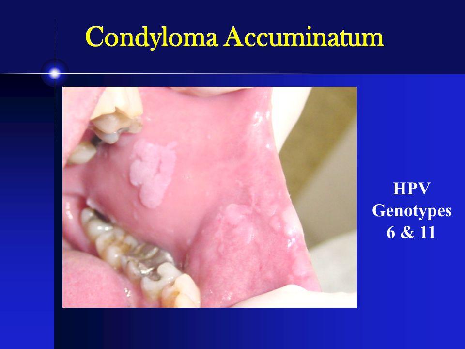 HPV Genotypes 6 & 11 Condyloma Accuminatum